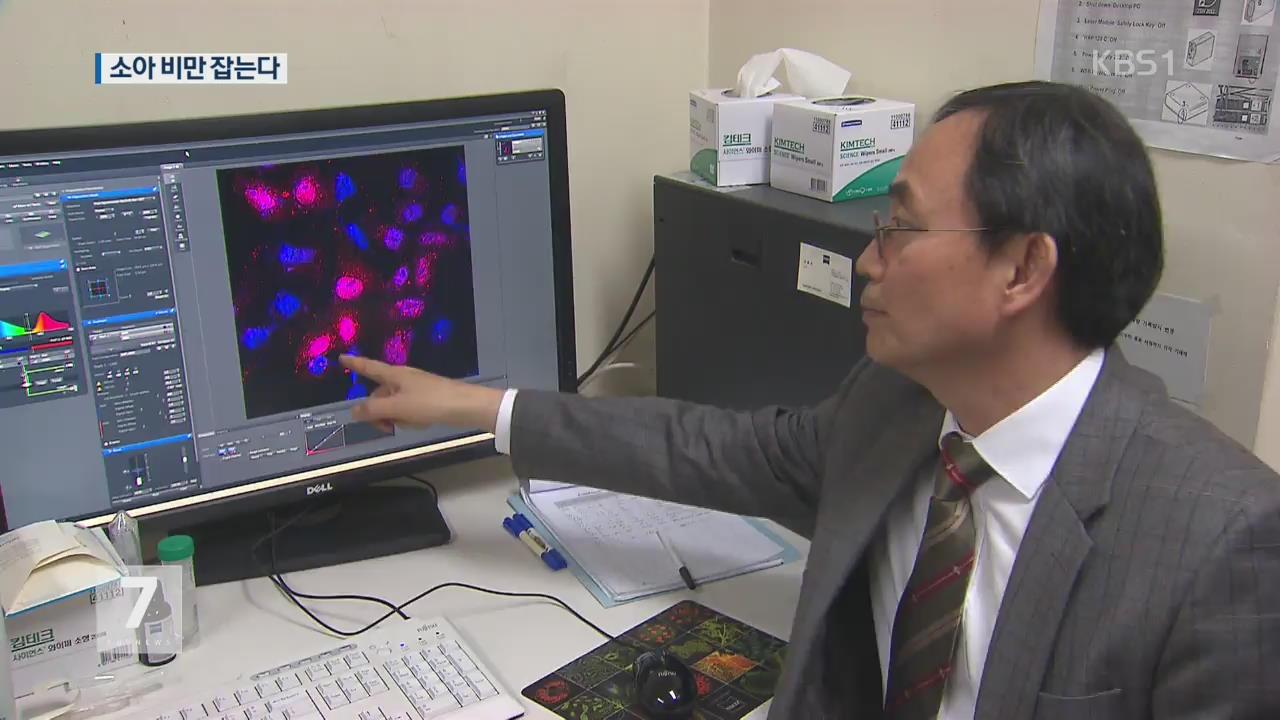 지방 줄기세포 분화 억제, 소아비만 잡는다