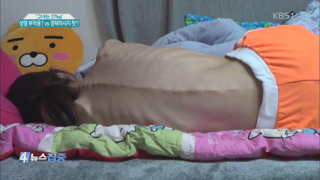 '그녀는 27kg' 성형 부작용? vs 경락마사지 탓?