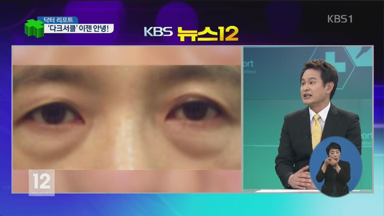 [닥터 리포트] 퀭한 눈밑 '다크서클' 개선 방법은?