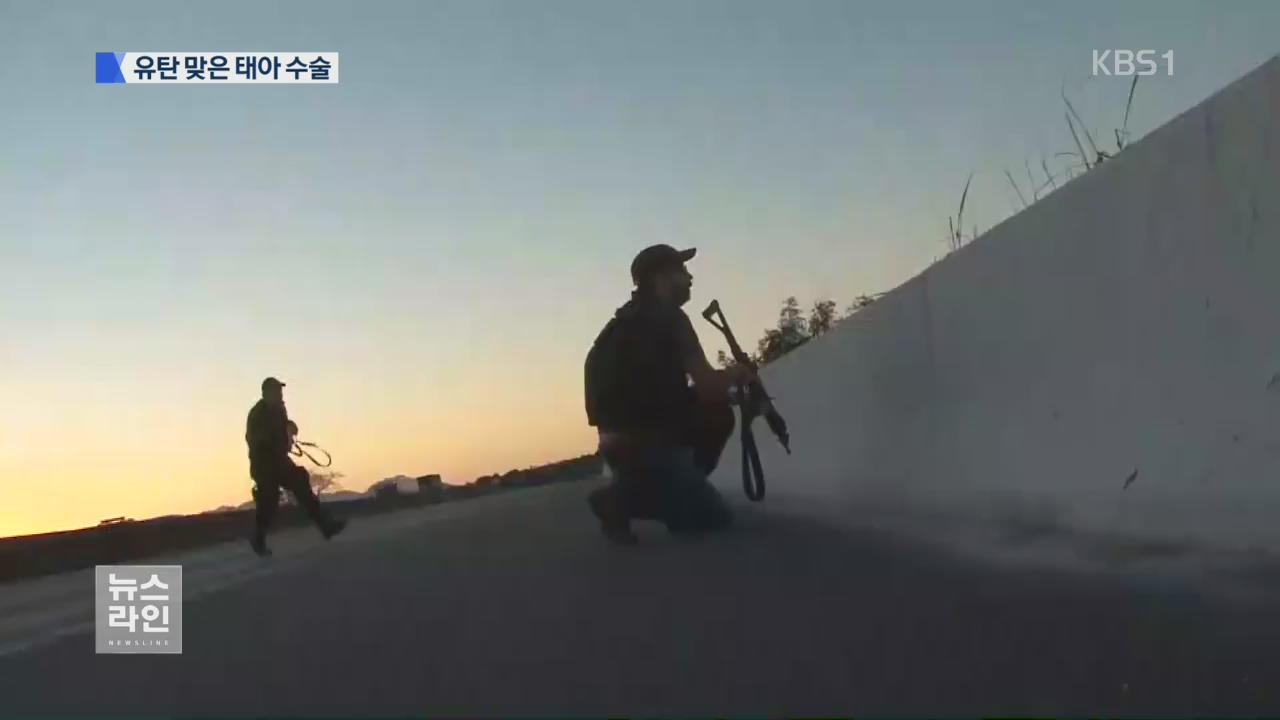 관광 '리우' 총격 공포…태아까지 유탄