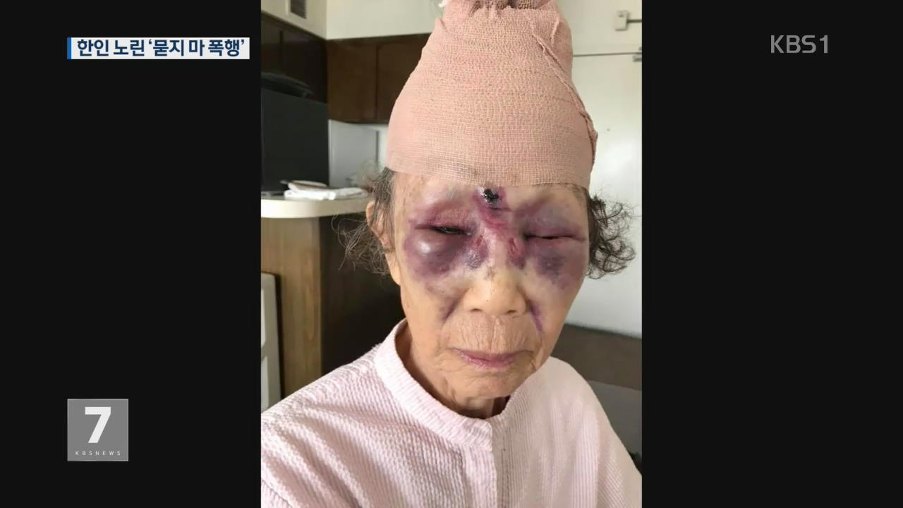 LA 한인타운서 80대 노인 '묻지마 폭행' 당해