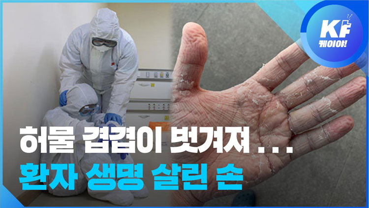[영상] 땀으로 범벅돼 부르튼 손…코로나 현장 속 간호사들의 사투